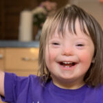 How to diagnose down syndrome symptoms