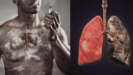 health condition tobacco diseases